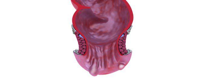 Las hemorroides son inflamaciones de las venas que se encuentran entre el recto y el ano