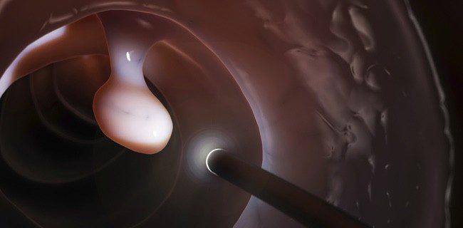 La colonoscopia es una forma sencilla de detectar y acabar con el cáncer de colon
