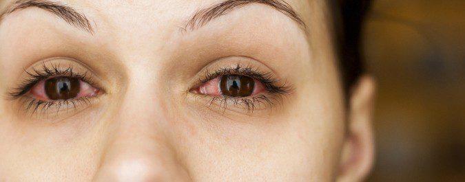 EL enrojecimiento ocular es el síntoma más común de la conjuntivitis alérgica