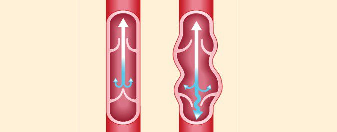 Cuando las válvulas que permiten la sangre retroceder dejan de funcionar correctamente, la sangre se acumula