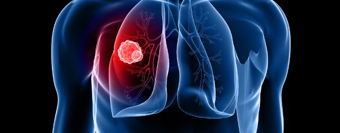 Cada vez hay menor riesgo de morir de cáncer de pulmón si se detecta a tiempo