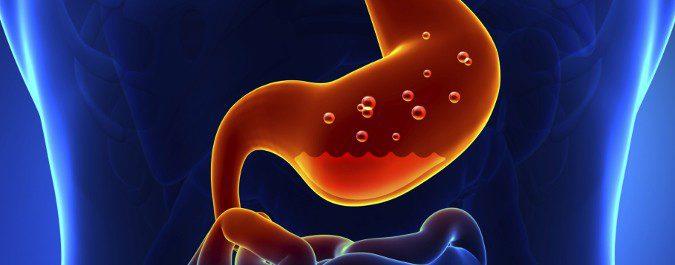 La sensación de acidez es producida por el reflujo de ácidos que suben por el esófago