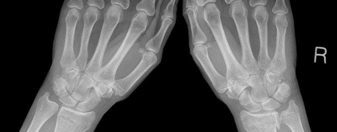 La osteoporosis debilita nuestros huesos y puede provocar dolor y lesiones en diferentes zonas