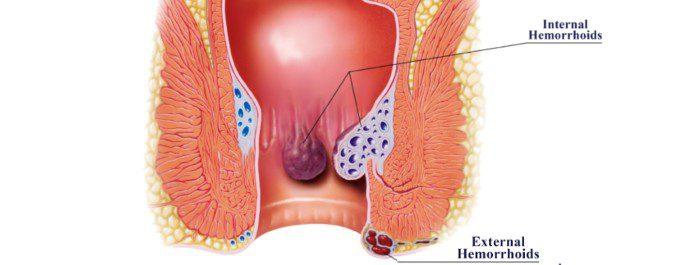 Hemoal contiene un producto vasoconstrictor y un anestésico que calma el dolor y el picor