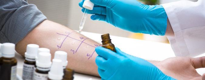 Cuando los síntomas de la alergia son fuertes debemos acudir al médico especialista