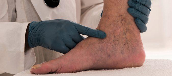 Las varices no solo aparecen en las piernas