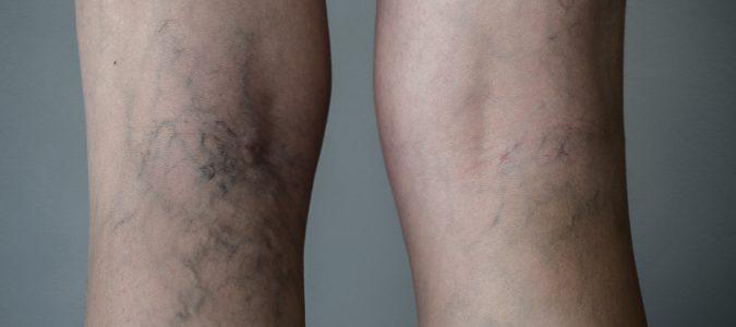 Una mala circulación puede derivar en la aparición de varices