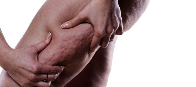 Esta acumulación de tejido adiposo suele localizarse en los muslos