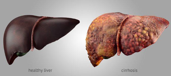 La cirrosis se produce por un daño continuado al hígado