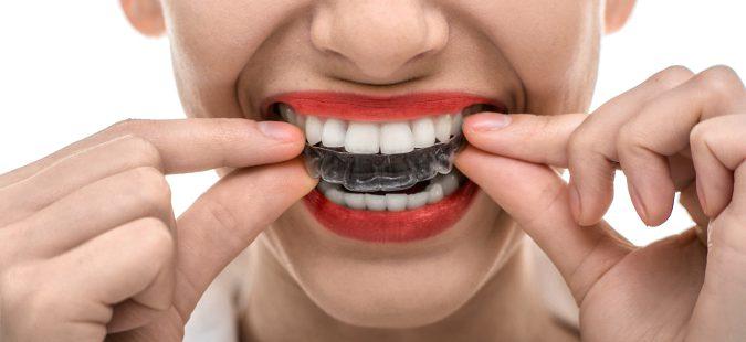 Corrector dental