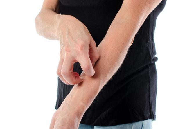 En los casos más leves quizás los síntomas se presenten unos minutos después de haber consumido la pieza de fruta