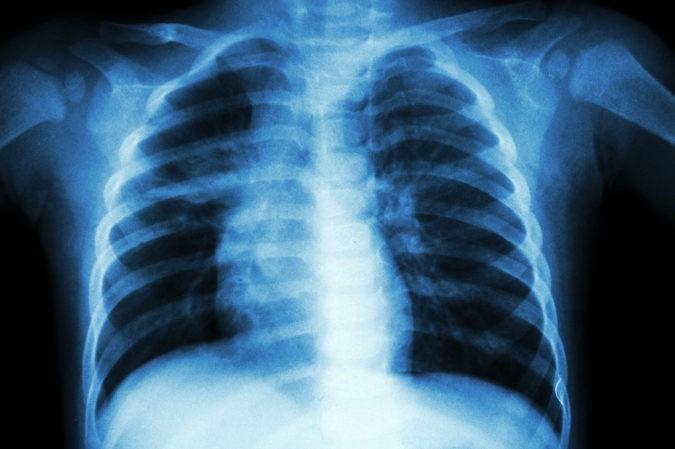 El virus de la tuberculosis se instala principalmente en los pulmones