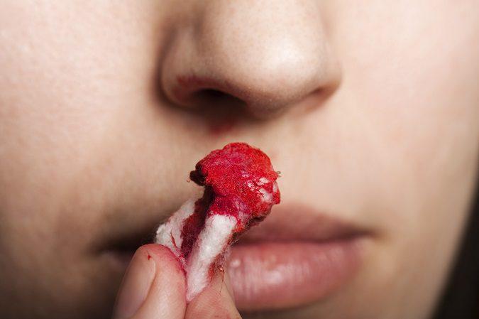 Sangrado continuado de la nariz