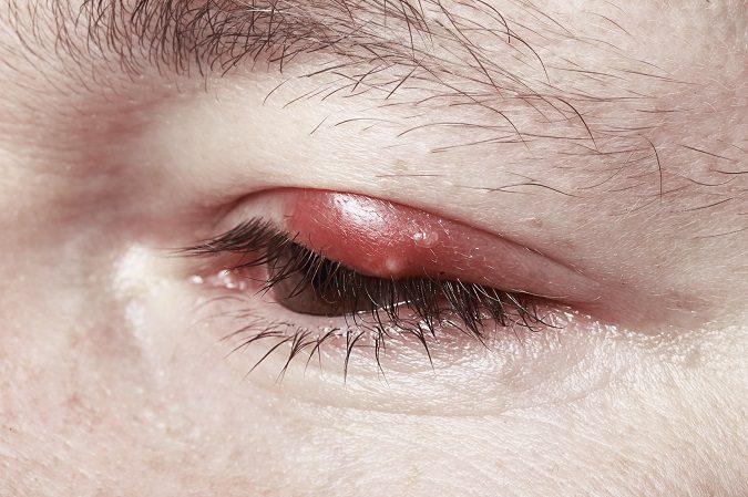 Un orzuelo es una protuberancia dolorosa que sale en el párpado y que duele