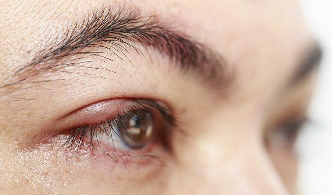 La infección es dolorosa y parece que tengas algo metido en el ojo