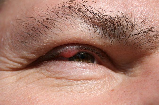 Los síntomas del orzuelo incluyen dolor e hinchazón