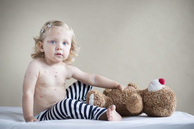 Muchos padres optan por vacunar a sus hijos de la varicela