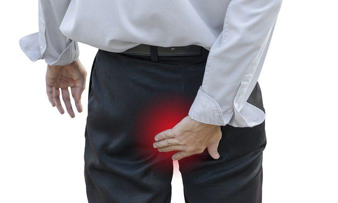 Escoge el remedio casero que mejor te vaya para tratar las hemorroides