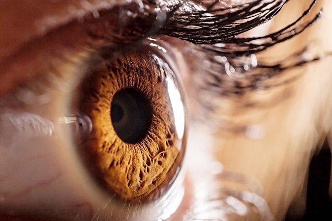 El queratocono es una enfermedad de los ojos muy poco común