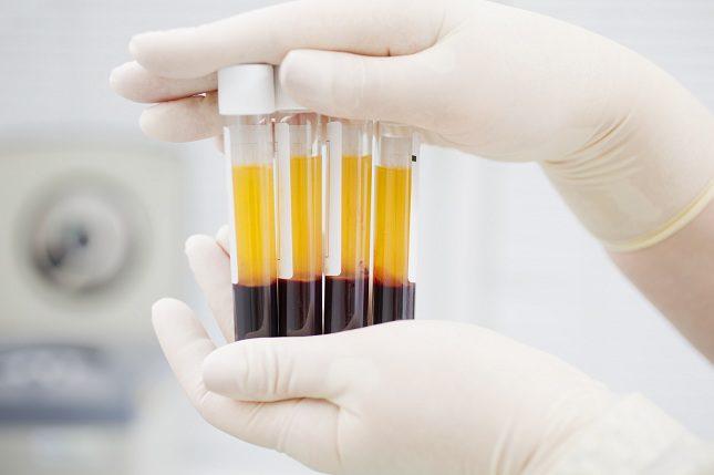 Las plaquetas son las células más pequeñas que se pueden encontrar en la sangre