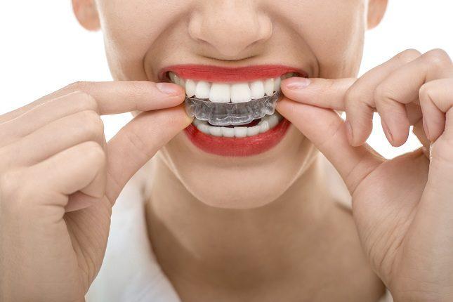 La ortodoncia es el método más popular para lucur unos dientes en perfecto estado