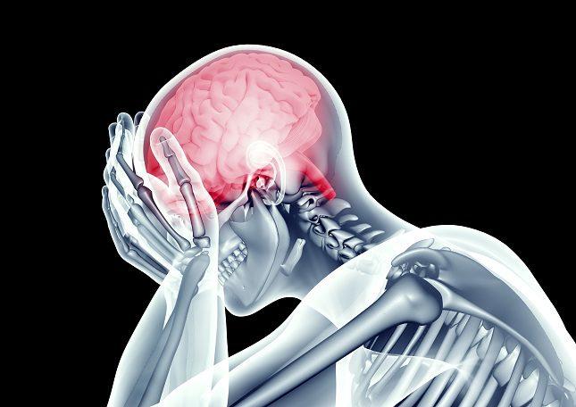 El derrame cerebral es el bloqueo del flujo de sangre en el cerebro