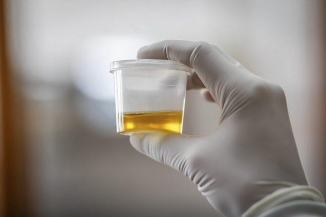 Las enfermedades con las que más se realiza la prueba de orina son aquellas que afectan al sistema genitourinario