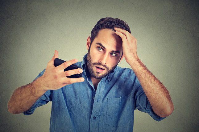 Cuando pensamos en alopecia se nos viene a la cabeza la calvicie