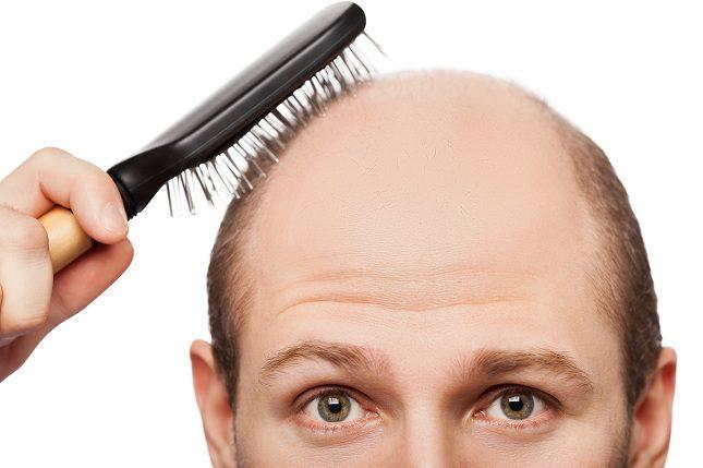 Existen diversos tipos de alopecia y no todos se pueden combatir