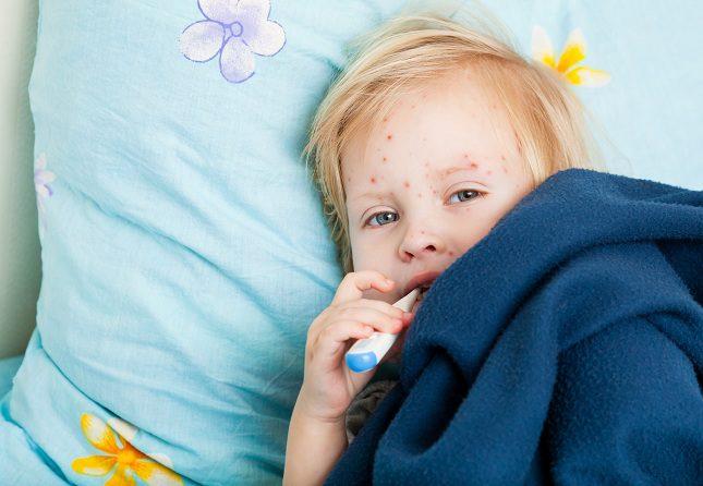 La varicela es una enfermedad infecciosa provocada por el virus varicela zoster