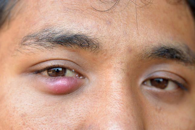 Otro síntoma que puede alarmar a la persona que sufre el orzuelo es el sangrado