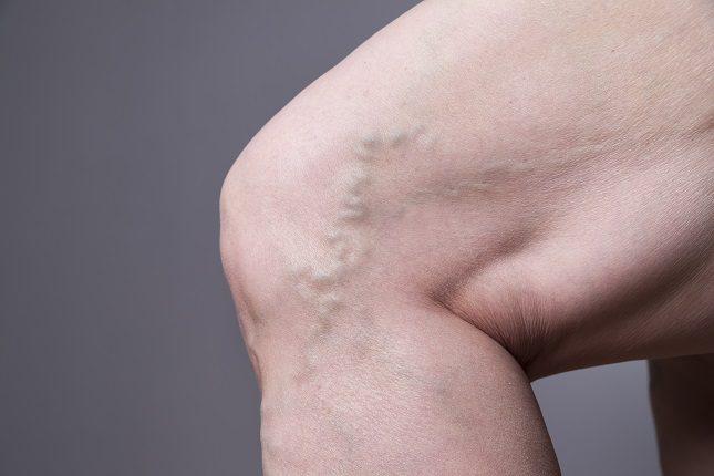 La flebitis es la inflamación de una vena