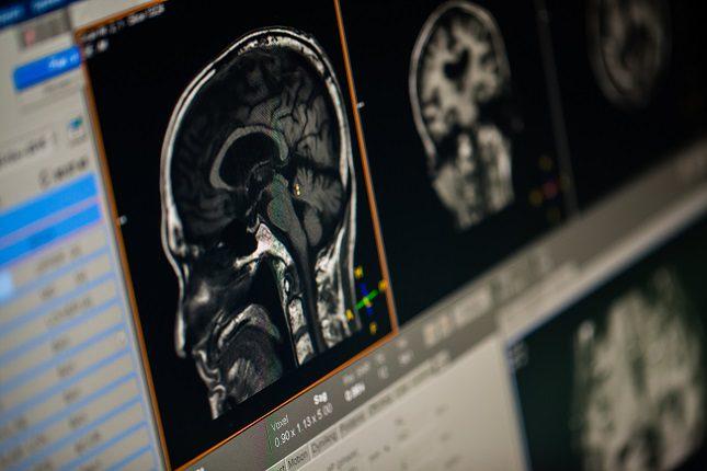 Si somos testigos de una crisis epiléptica lo primero que debemos hacer es mantener la calma