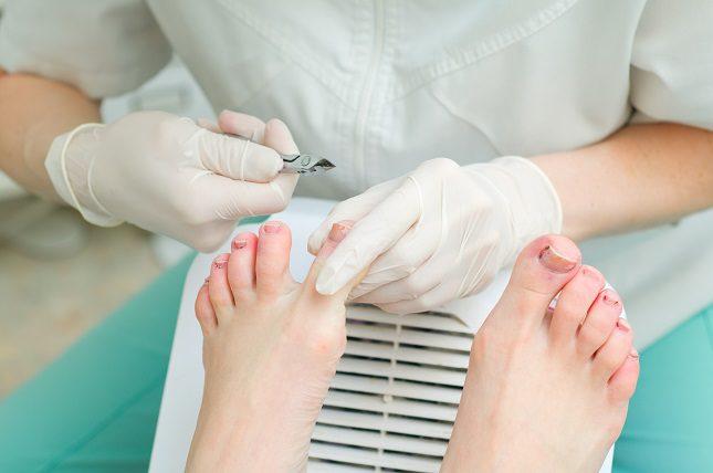 El uñero es una infección de la zona de la cutícula que rodea las uñas tanto de los pies como de las manos