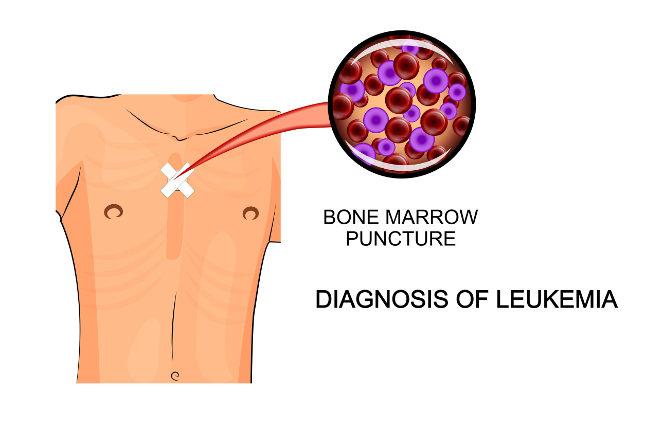 La biopsia de médula ósea se puede realizar pinchanzo en la cadera o el esternón
