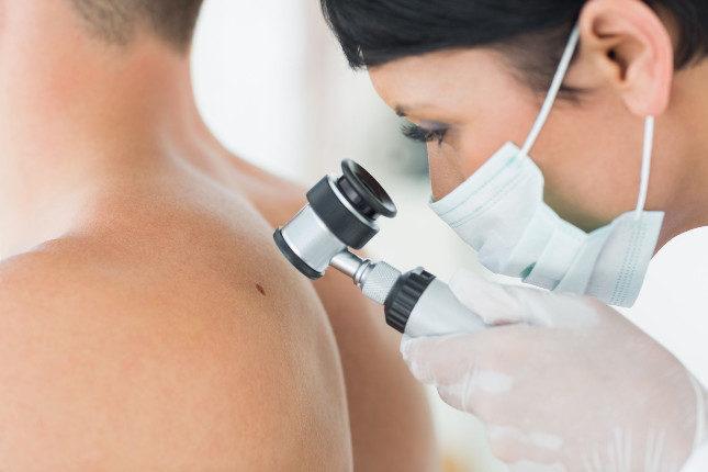 Hay varios tipos de biopsia, desde raspar la piel, hasta la cirugía