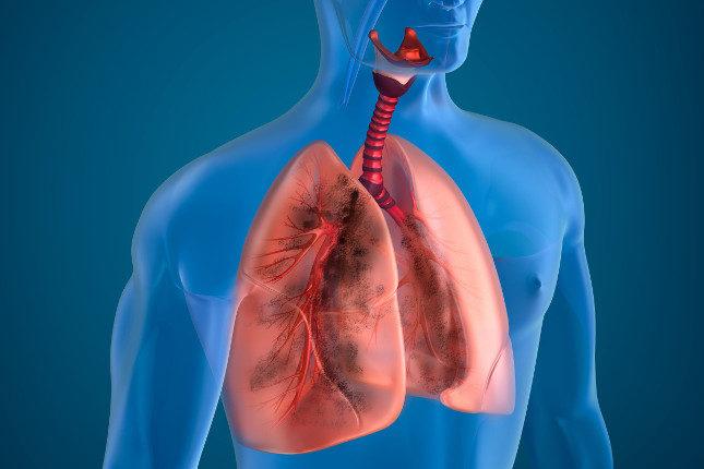 La broncoscopia se suele realizar con anestesia