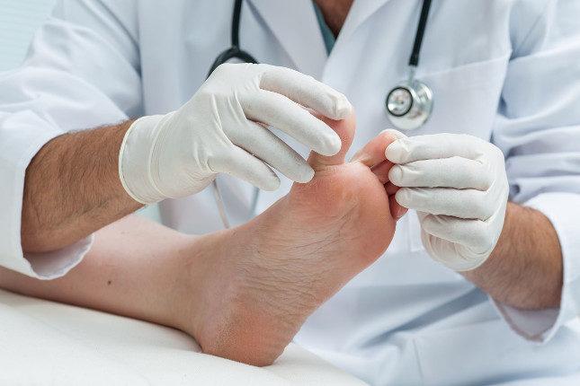 Si notas dolor en el dedo y sospechas que pueda ser un uñero, acude al médico