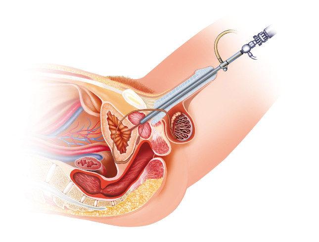 El cistoscopio es el instrumento con el que se realiza esta prueba