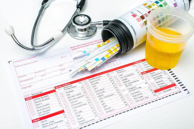 La cistoscopia es una prueba médica para detectar problemas renales