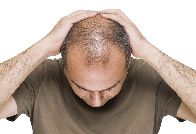 Son muchas las personas a las que se le cae el pelo