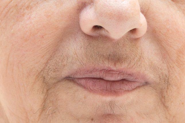 El síndrome de ovario poliquístico es la causa más frecuente y común del hirsutismo