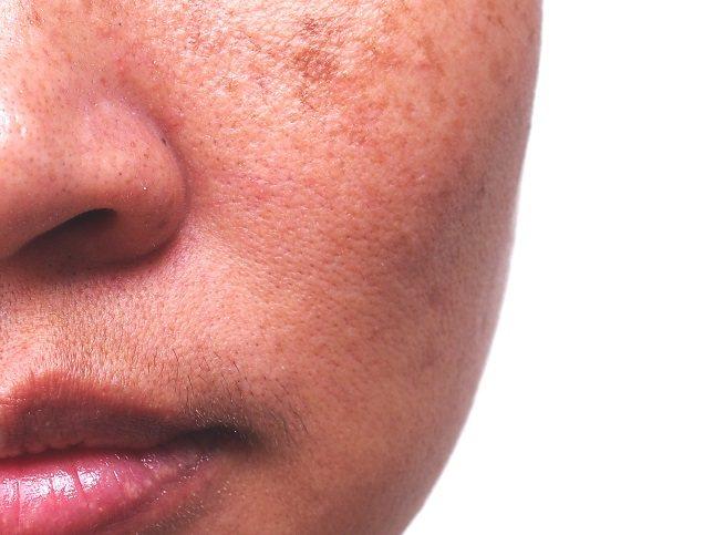 El segundo síntoma de una persona con síndrome de Melkersson-Rosenthal es la hinchazón de la cara