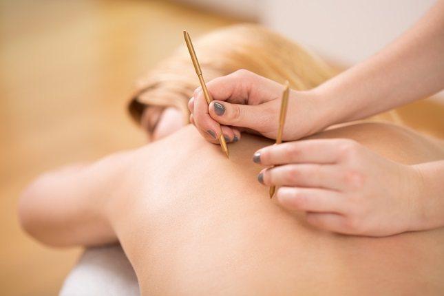 La acupuntura puede ser beneficiosa siempre y cuando se realice correctamente por un profesional