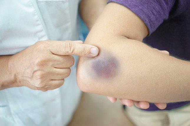 La cúrcuma se usa habitualmente en la medicina tradicional para reducir la inflamación