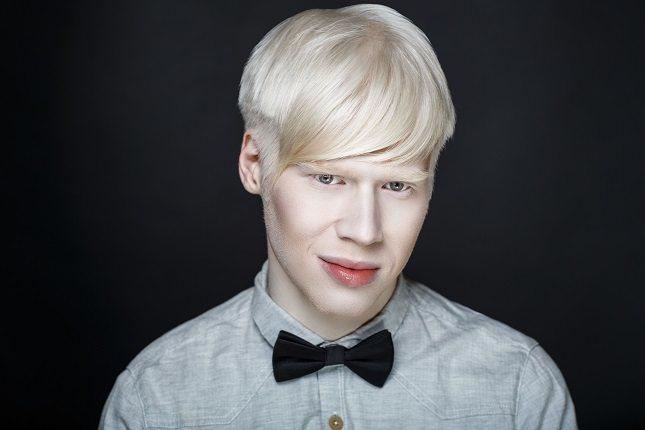 El albinismo es un trastorno o condición hereditaria
