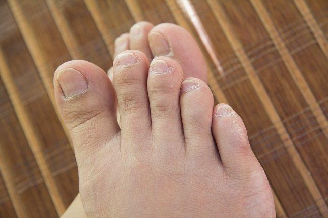 Otra lesión cutánea común del envejecimiento que con frecuencia afecta los pies es la queratosis del estuco