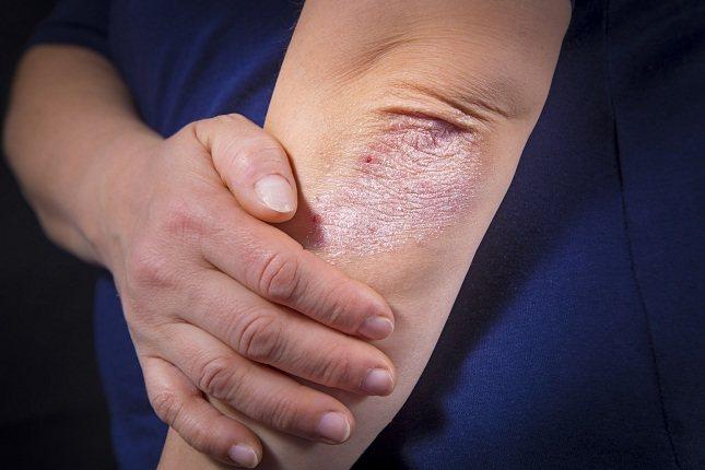 La piel de la persona que sufre tal afección se ve dañada considerablemente