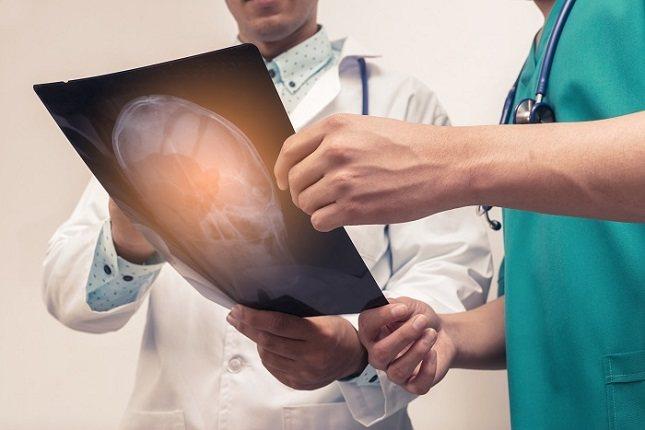 Los síntomas de la hipertensión intracraneal no suponen un deterioro en el aspecto físico del paciente