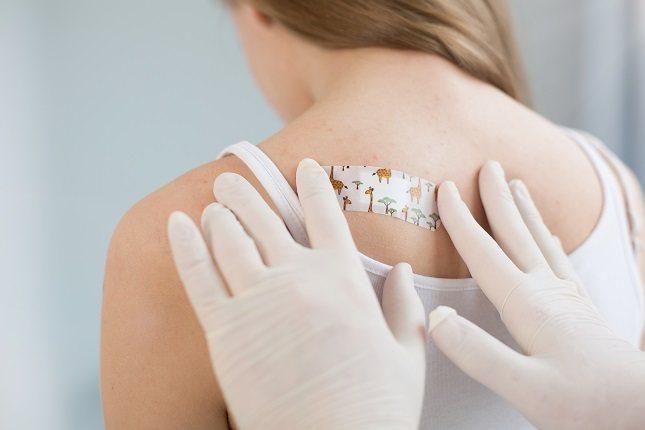 El melanoma suele tener la forma de lunares o pecas